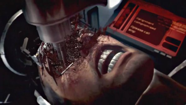 Laser Eye Surgery - Dead Space 2